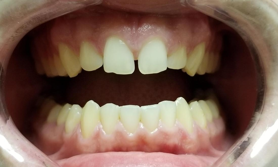 small misshapen front teeth before dental treatment