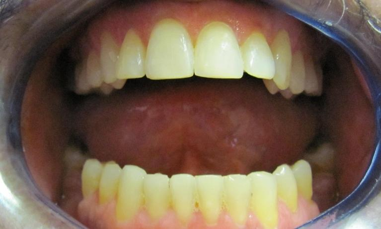 Adult-Orthodontics-After-Image